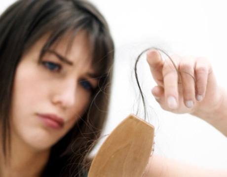 Alopecia: ¿Qué es?